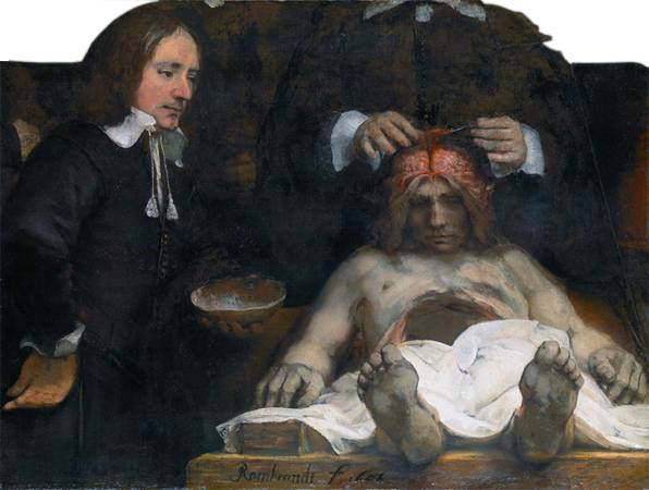 林布蘭《瓊德曼醫生的解剖課》。圖/取自英文維基百科。