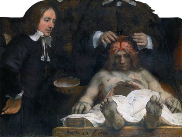 林布蘭,《瓊德曼醫生的解剖課》,1656。圖/取自Wikipedia。