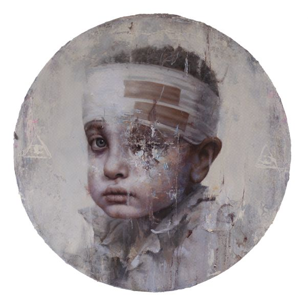 羅展鵬-《受傷的敘利亞少年》